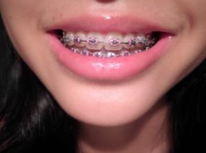 orthodontist in san antonio