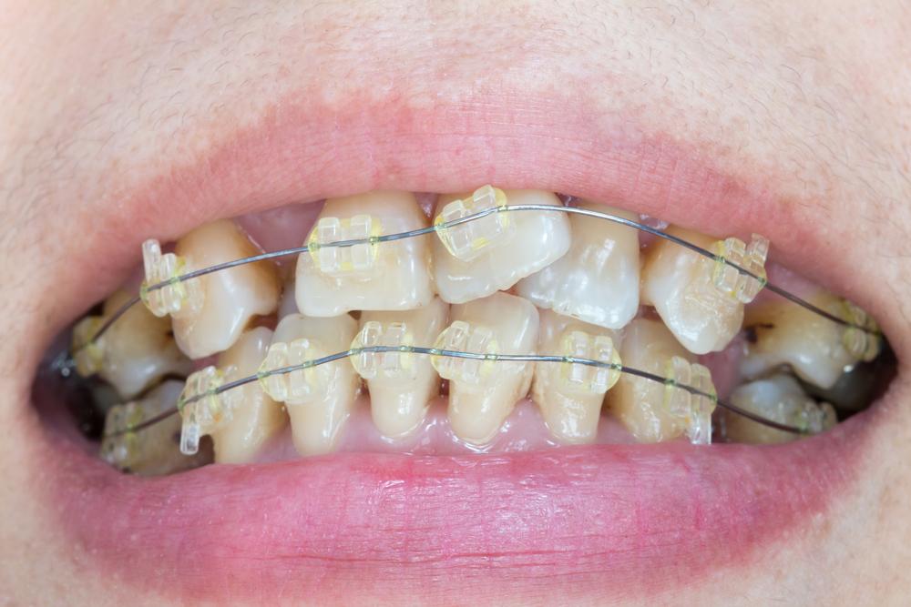 Orthodontics -Clear Braces