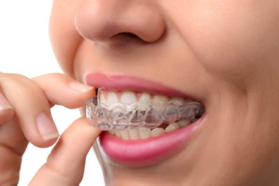 clear braces - invisalign san antonio
