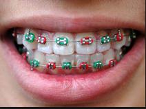 Orthodontics - metal braces