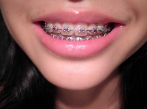 orthodontist in san antonio