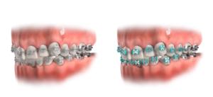 metal braces - orthodontics